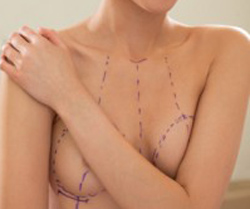 surgical breast augmentation